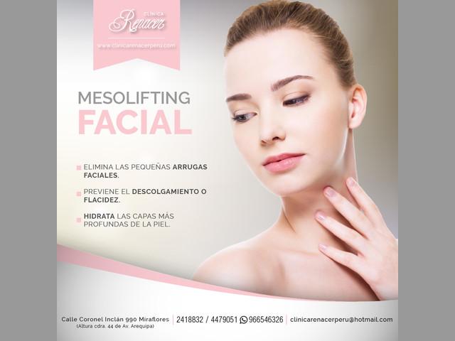 Técnica Mesolifting facial - Clínica Renacer
