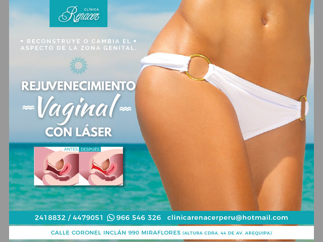 Tratamiento Vaginal láser - Clínica Renacer