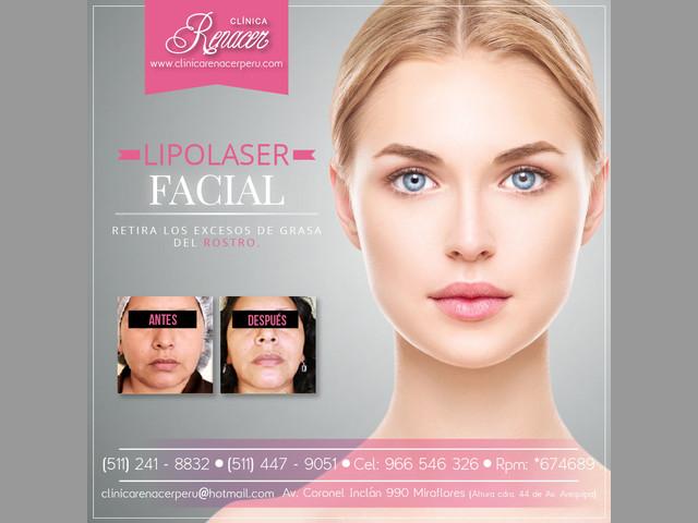 Lipolaser de rostro - Clínica Renacer