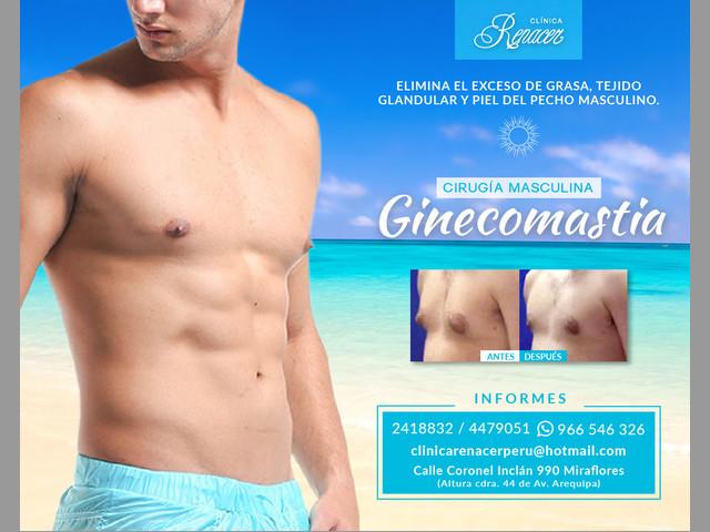 Reducción de mamas masculinas - Clínica Renacer