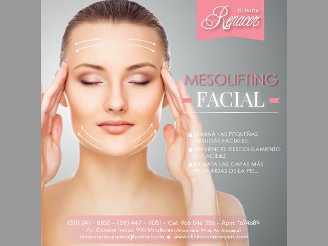 Mesolifting facial - Clínica Renacer