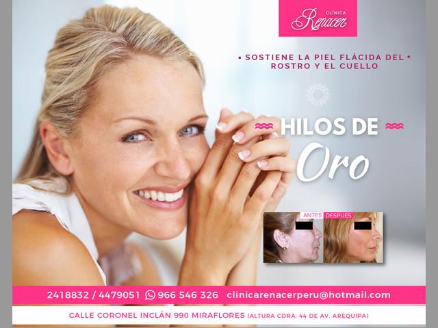 Rejuvenecimiento facial con hilos - Clínica Renacer
