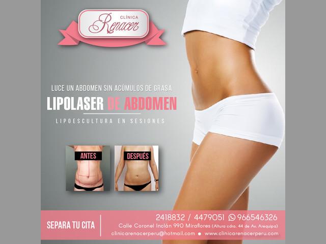 Disminuye la grasa del abdomen - Clínica Renacer