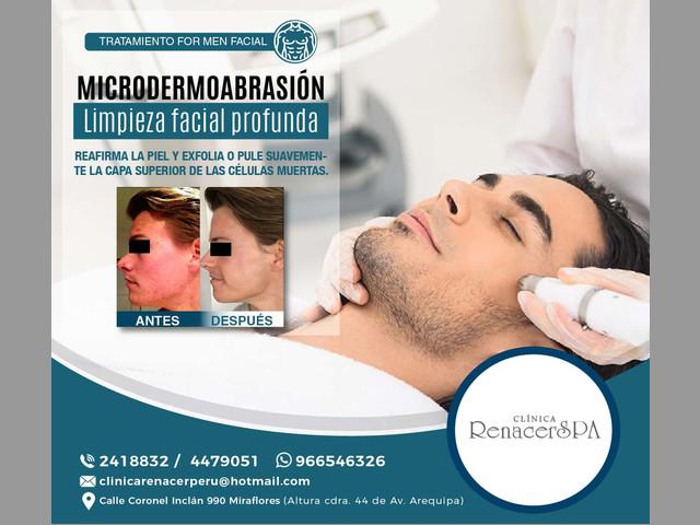 MICRODERMOABRASIÓN -clínica renacer spa