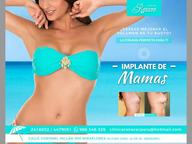 Implante mamario - Clínica Renacer
