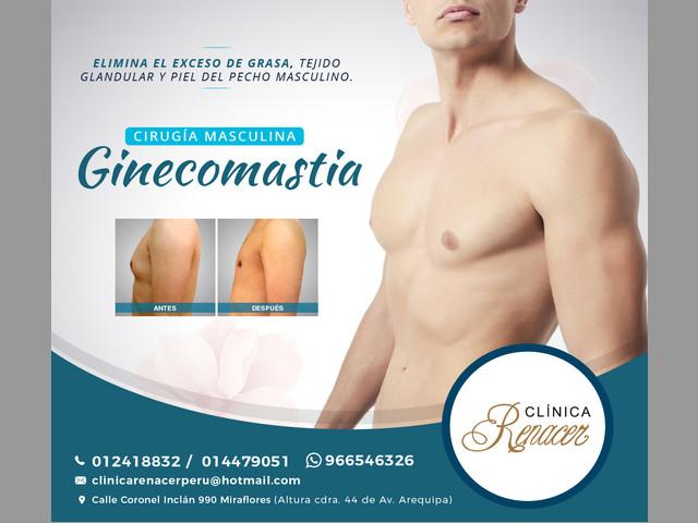 Elimina la Ginecomastia - Clínica Renacer