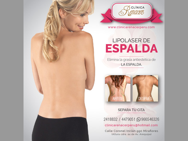 Mejora la definición de la espalda - Clínica Renacer